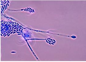 Fusarien wachsen meist in pflanzlichem Gewebe, beispielsweise in Lebensmitteln oder Getreide. Viele Arten sind parasitär, wobei sie ihren Wirt töten.